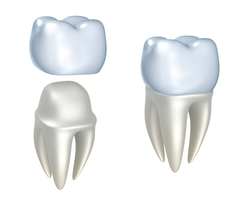 Crown - www.thedentalsolution.com