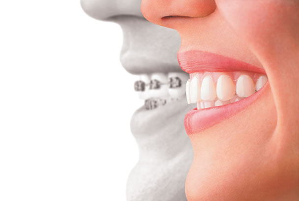 We are the best Invisalign provider in Canberra.