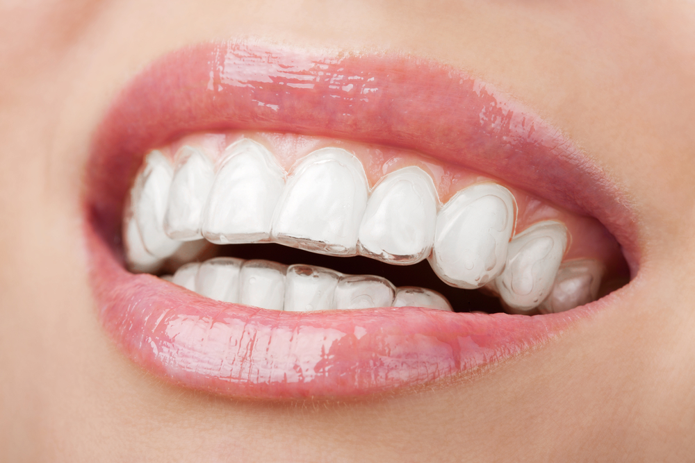We are the best dentistry in Canberra.