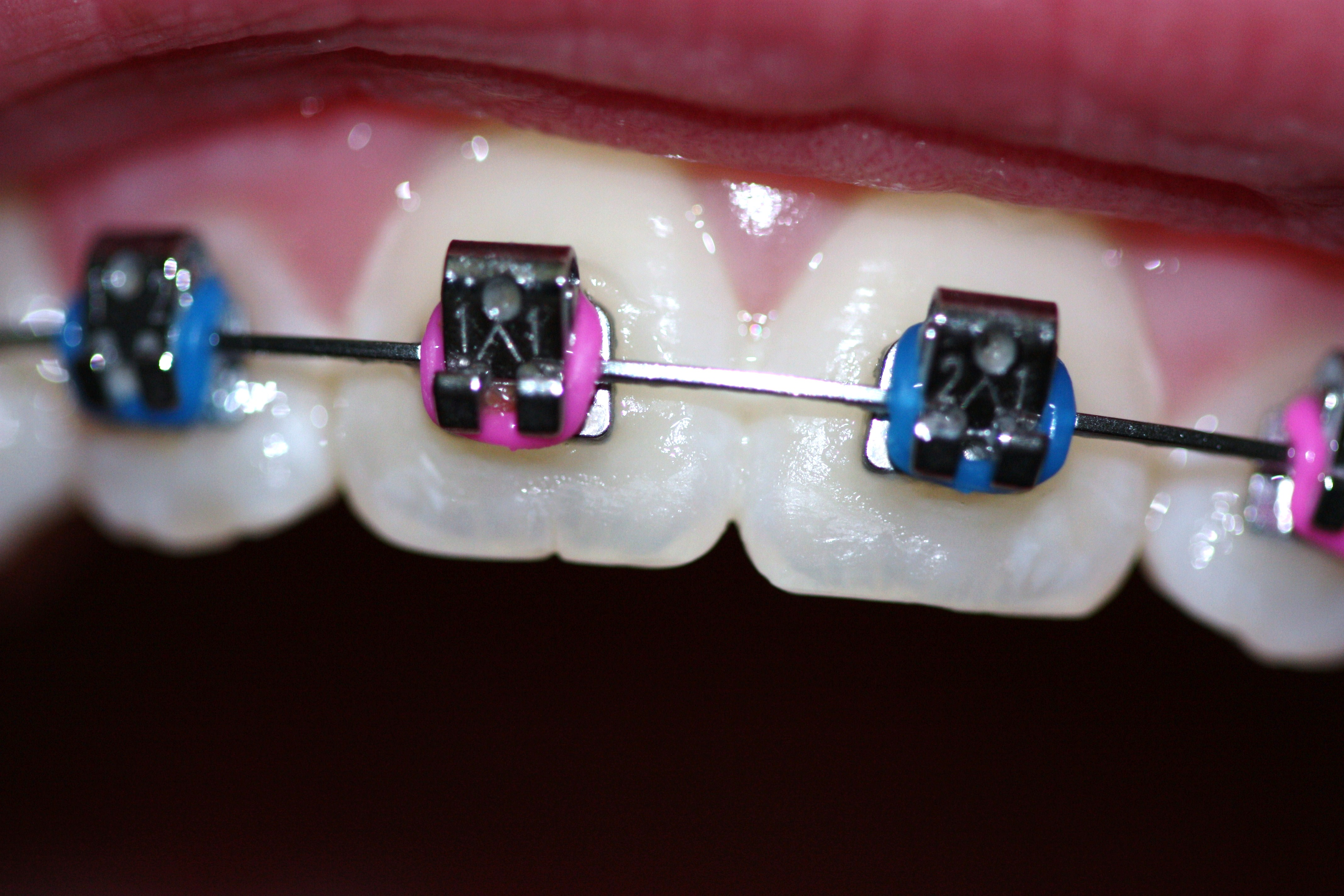 We are the best in Canberra when it comes to Orthodontics.
