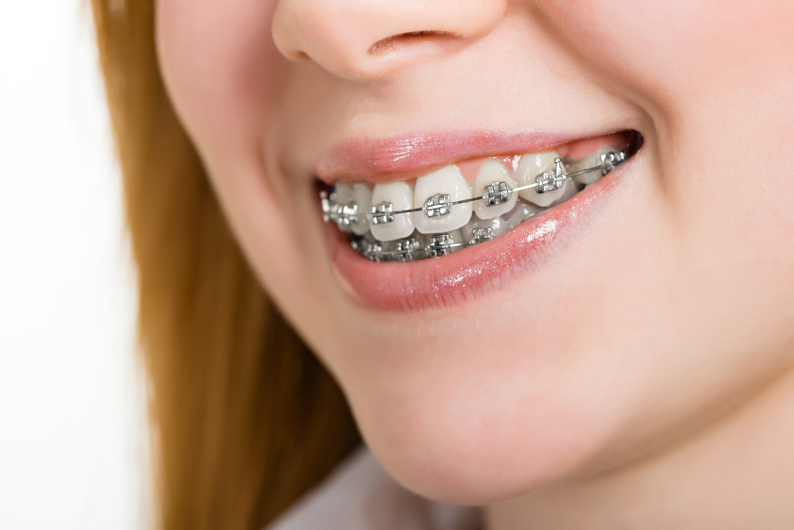 We have the best orthodontists in Canberra.