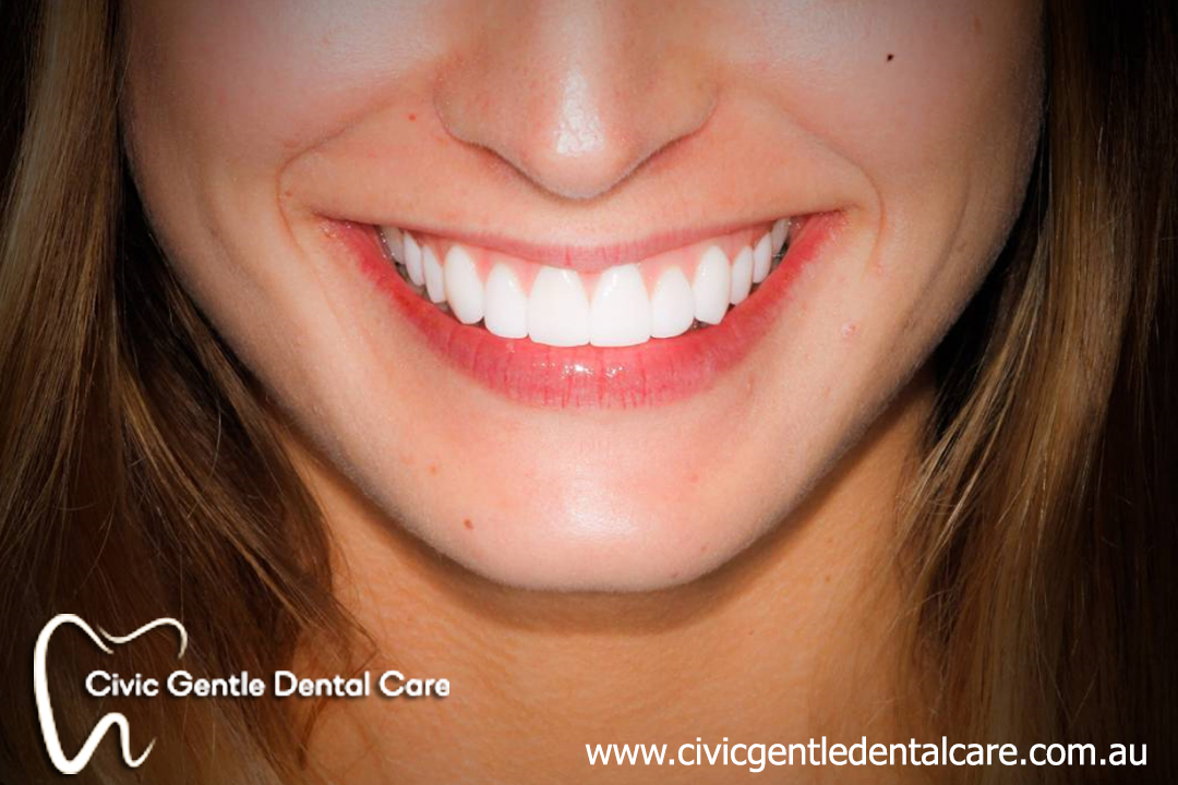 We are the experts of dental veneers in Canberra.