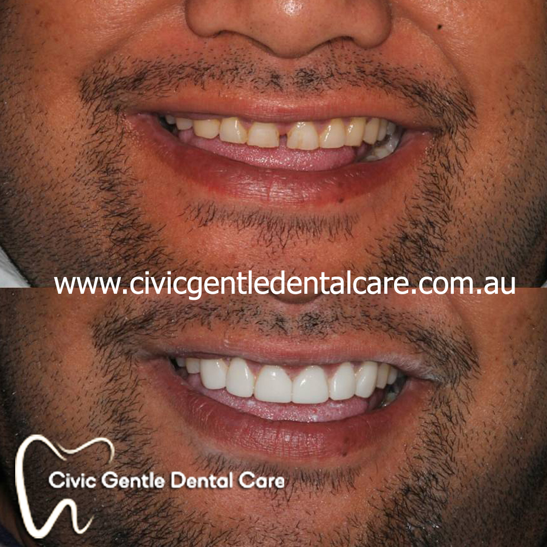 We are the best cosmetic and restorative dental procedures in Canberra.