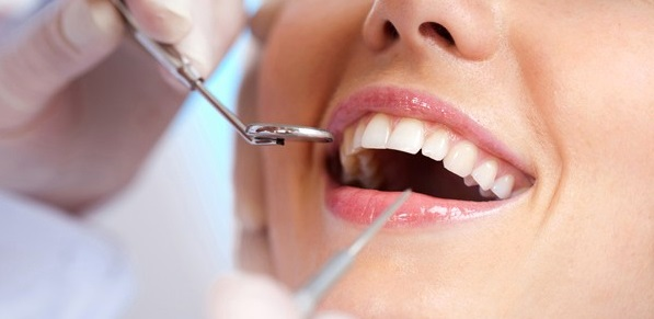 We have the best dental implants in Canberra.