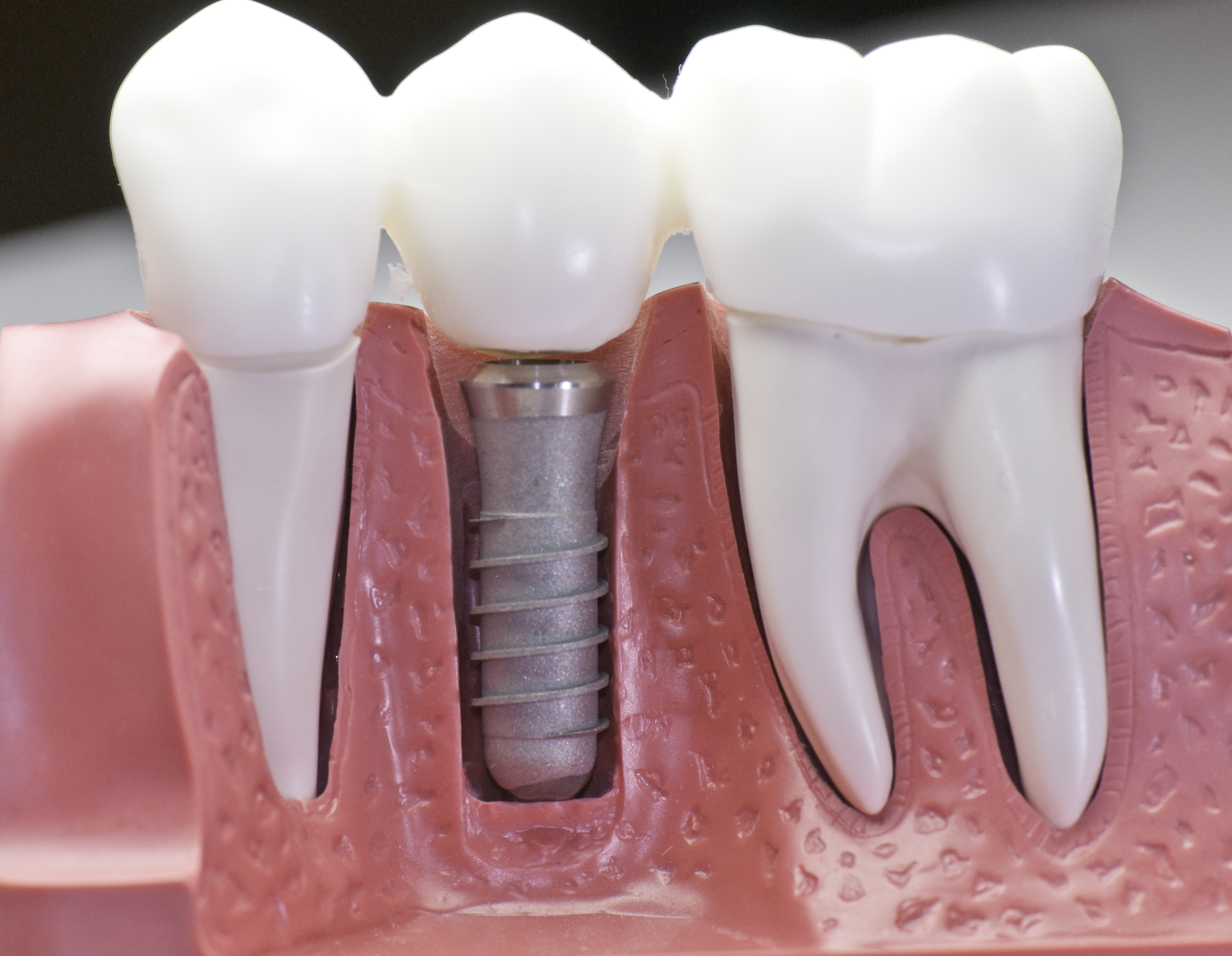We are the experts of dental implants in Canberra.