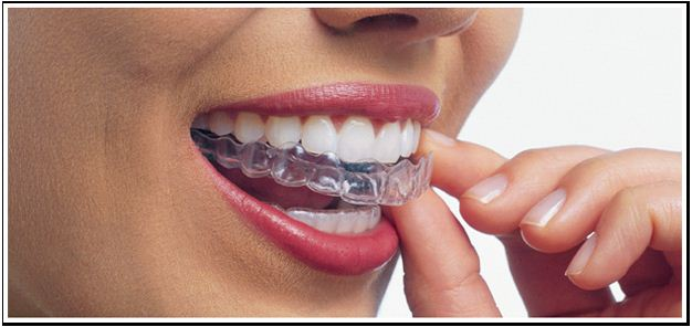 We provide high quality Invisalign in Canberra.