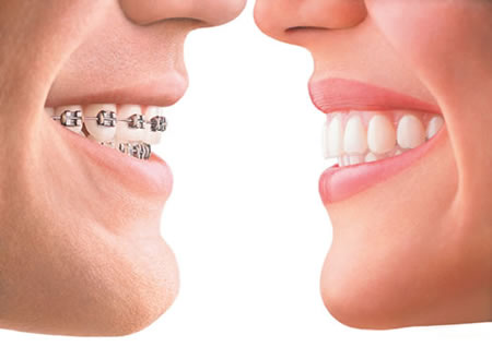 We are the best orthodontics in Canberra.