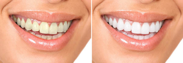 We are the experts of teeth whitening in Canberra.