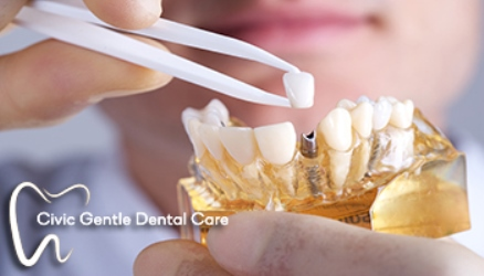 We have the best offer for dental implants in Canberra.