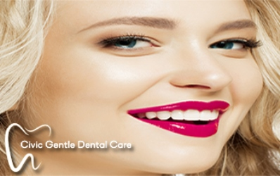 We have the best dental veneers special offer in Canberra.