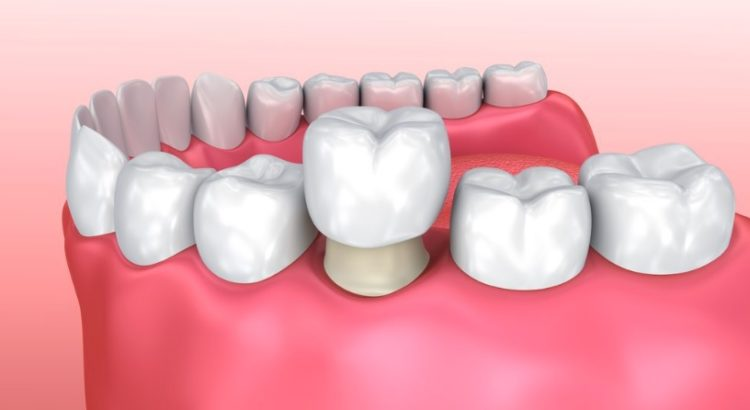 We are the best when it comes to dental crowns here in Canberra.