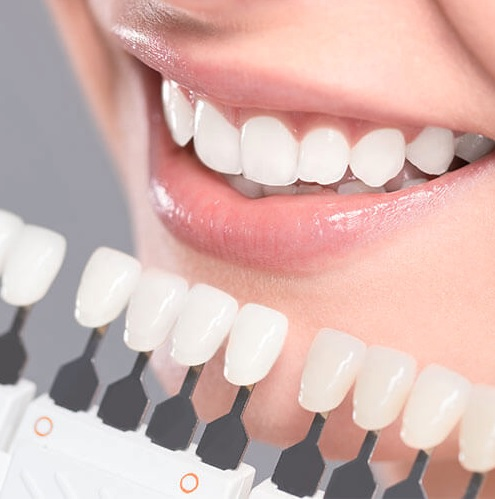 We have the best cosmetic dentist in Canberra.