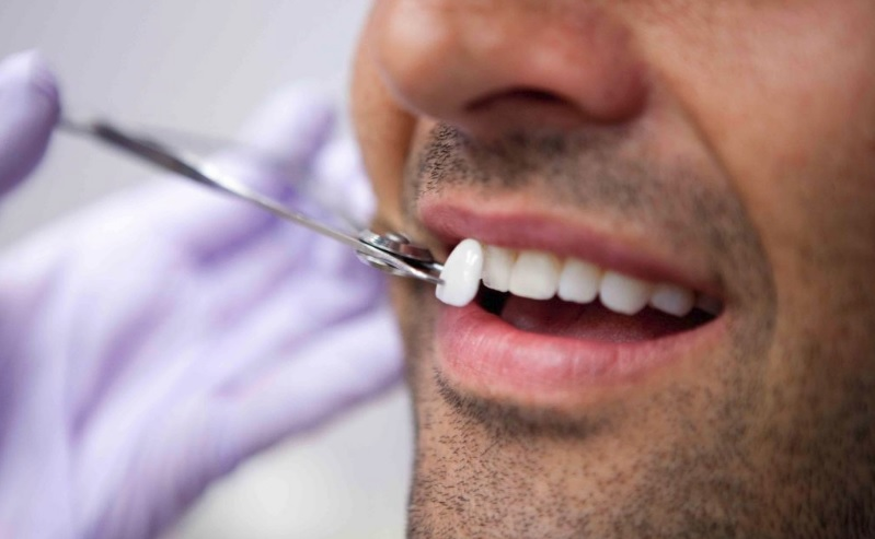 We give the best dental veneers in Canberra.