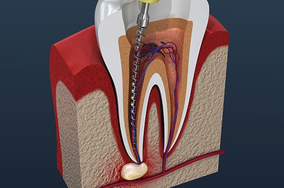 We have the best Endodontist in Canberra