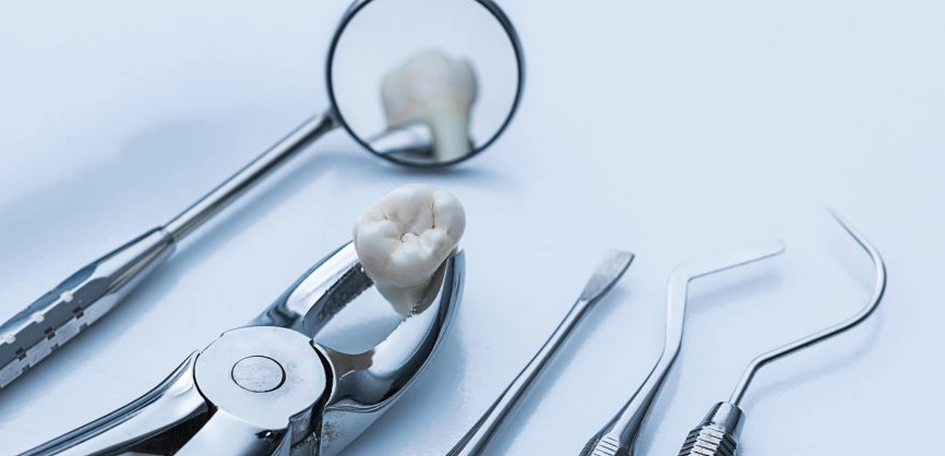We provide tooth extraction in Canberra.