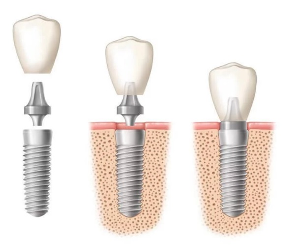 The best dental implant in Canberra