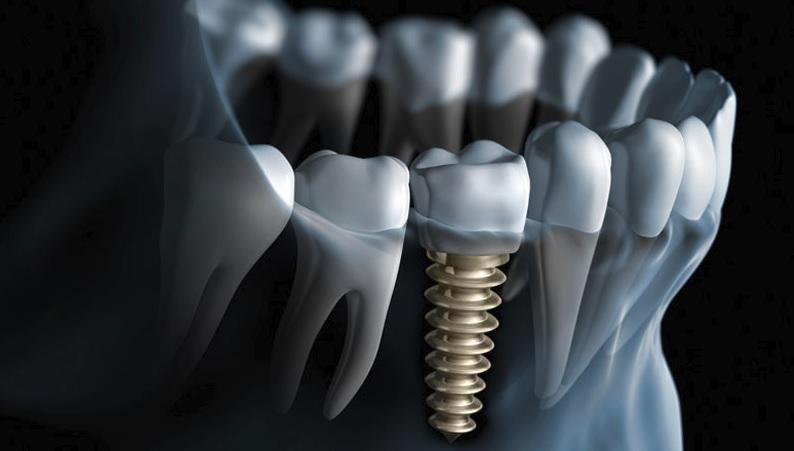Affordable dental implant in Canberra