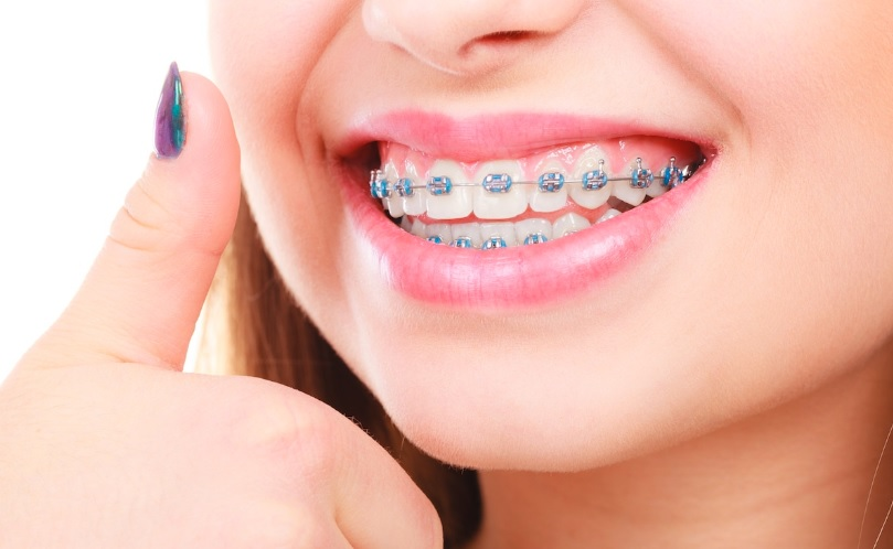 We have the best orthodontist in Canberra