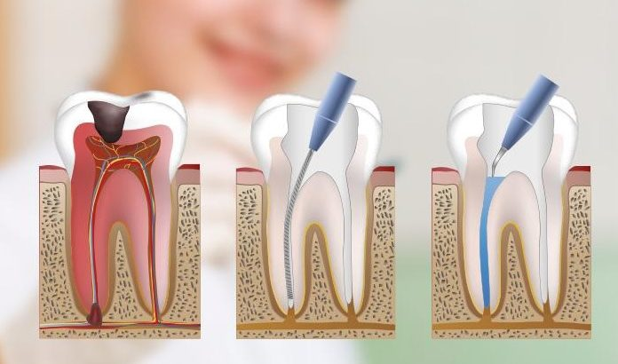 We have the best root canal therapy in Canberra