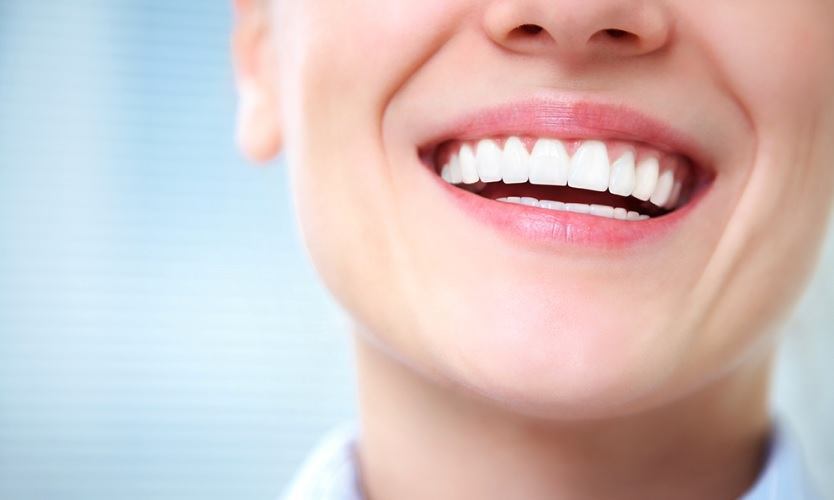 We have the best teeth whitening service in Canberra.