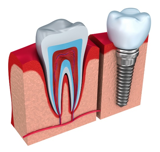 Dental implant cost in Canberra