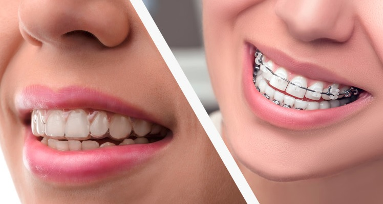 Invisalign Canberra
