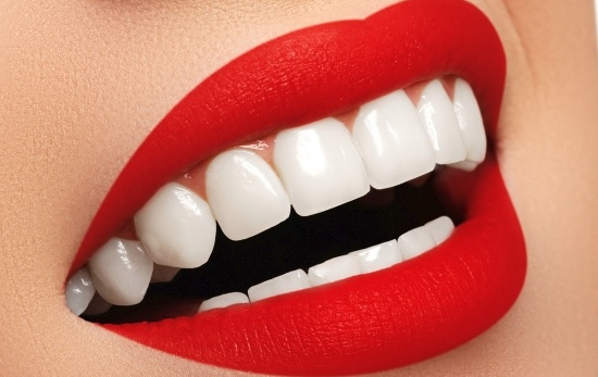 Teeth whitening prices in Canberra