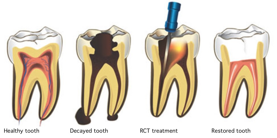 Root canal treatment in Canberra