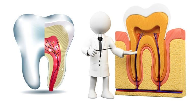 Root canal treatment cost in Canberra