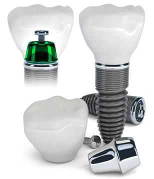Dental implants in Canberra