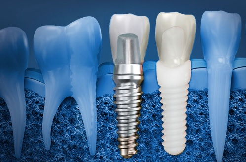 Dental Implant Cost Per Tooth in Canberra