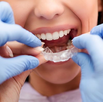 best orthodontist in Canberra