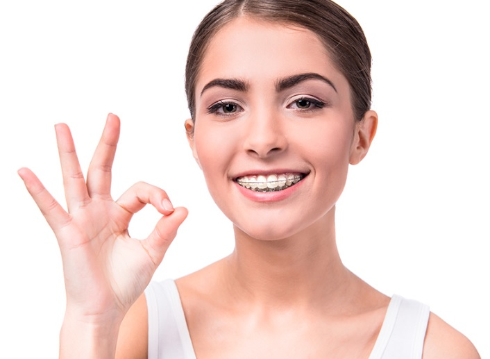 Orthodontist in Canberra