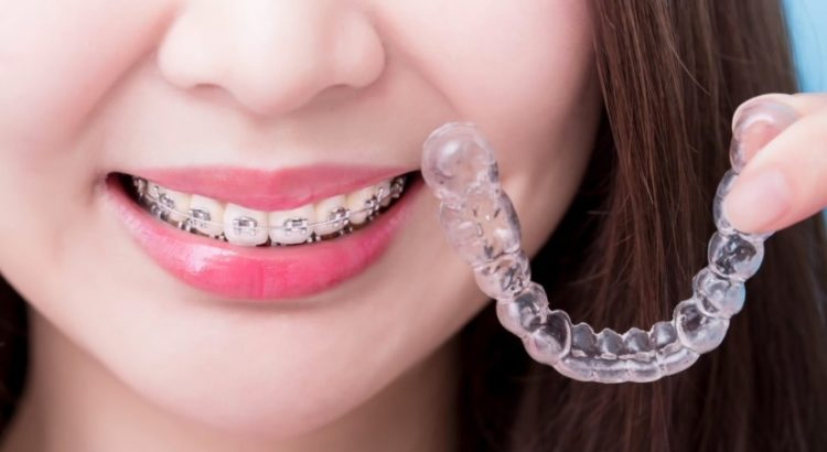 Types of braces in Canberra