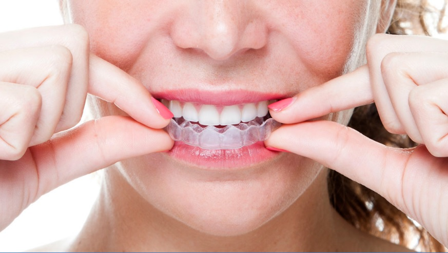 cost of invisalign in Canberra