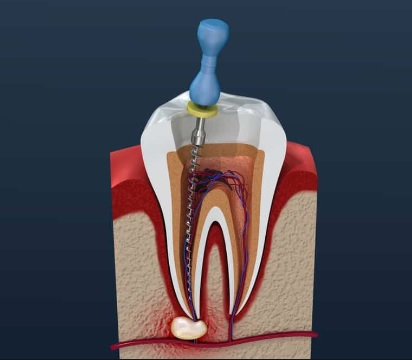 Root Canal Treatment Canberra