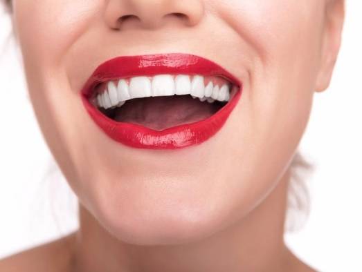 Teeth Whitening in Canberra