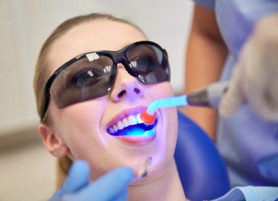 Teeth whitening dentist in Canberra