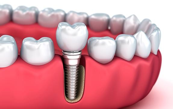 dental implant process timeline in Canberra