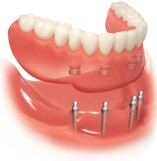 denture implants in canberra