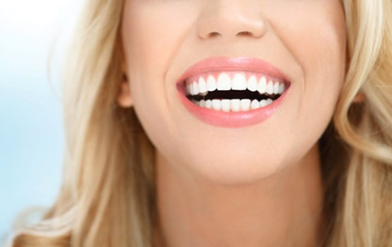 professional teeth whitening in Canberra
