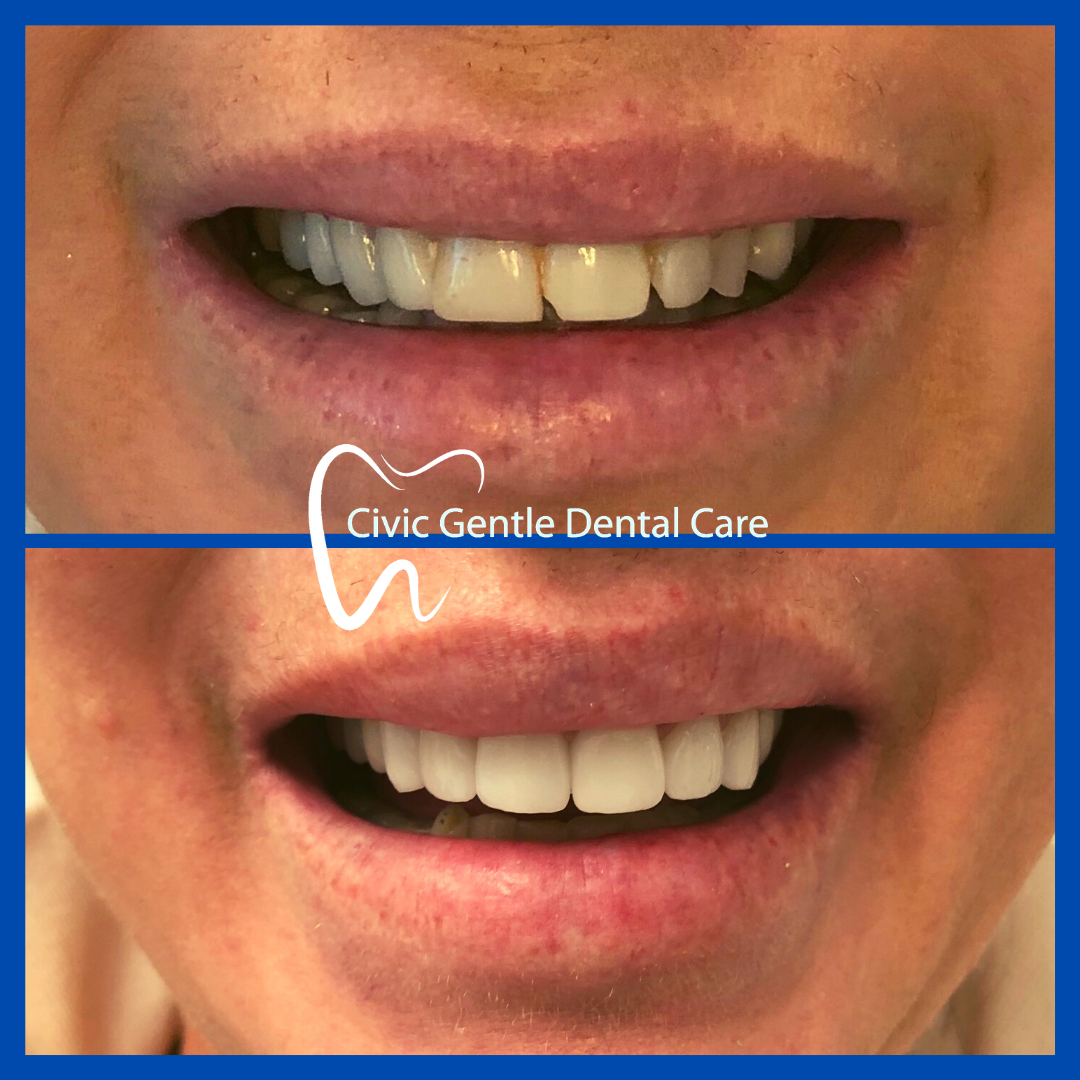Dental Veneers Canberra