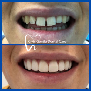 Dental Veneers by Dr Tam Le here in Canberra