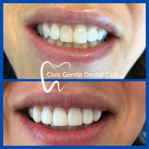 Smile Transformation by Dr Tam Le here in Civic Gentle Dental Care at Canberra