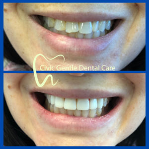Veneers by Dr Tam Le here in Civic Gentle Dental Care at Canberra