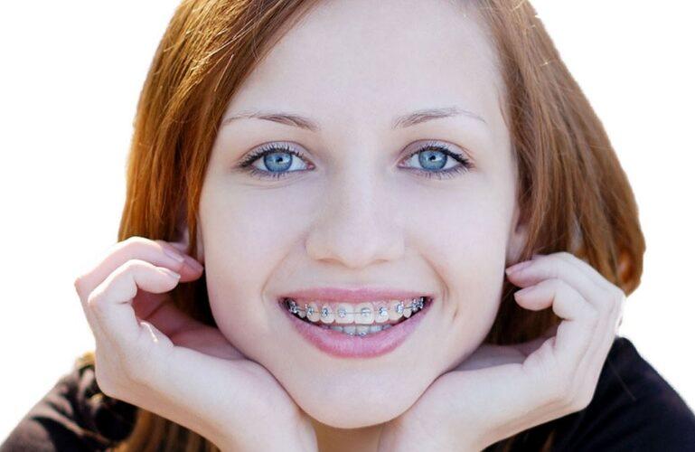 Best Braces For Teeth