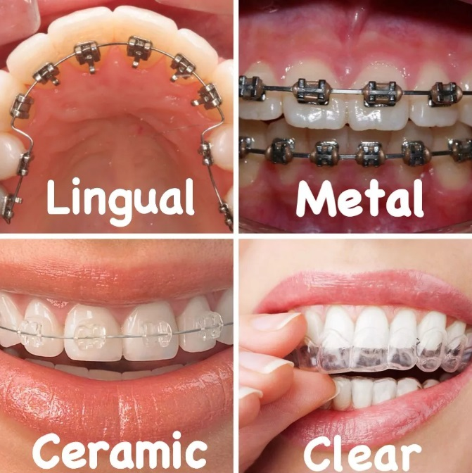 Best Braces For Teeth