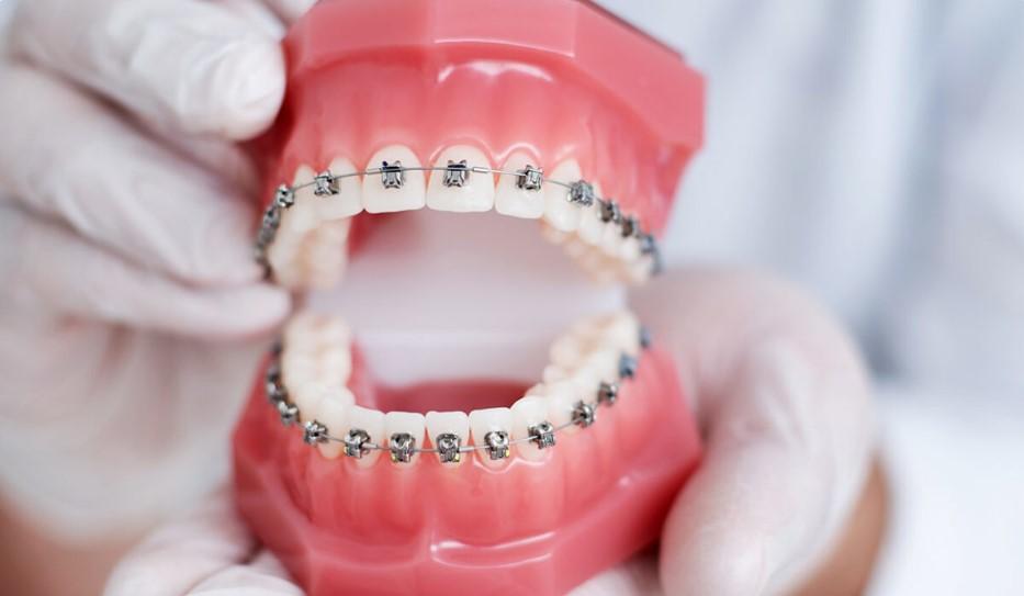 Orthodontics Canberra